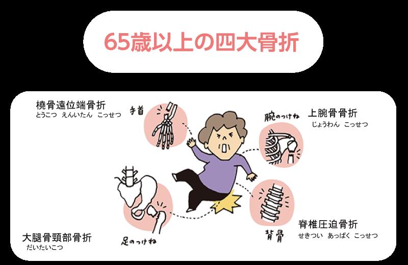 骨折 関連 大腿 骨 図 頸 部 大腿骨頚部骨折の看護計画 症状、手術、看護問題・過程